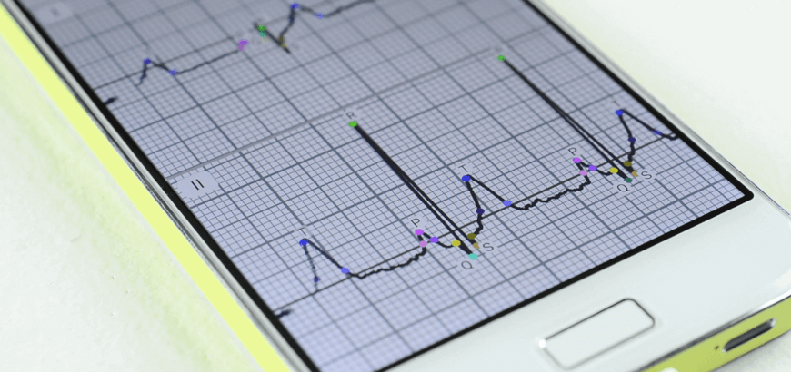The Multichannel ECG on Your Smartphone: The ECG Dongle Review
